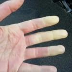 main blanche de froid pour Agnès