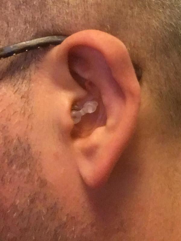 bouchon d'oreille ouvert Alvis audio sur David Jazt