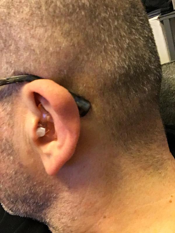 bouchon d'oreille fermé